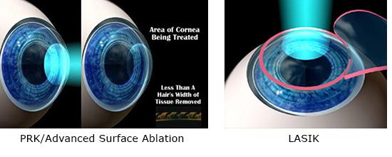 Minneapolis Prescription Contact Lenses Test Eye Care Associates